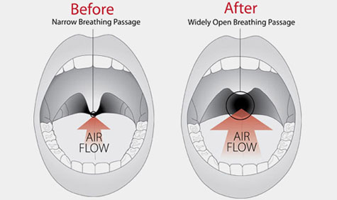 Surgical Snoring Solutions